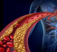 Miażdżyca i jej objawy. Przyczyny oraz grupy ryzyka arteriosklerozy.